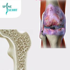 Pengapuran vs Pengeroposan Tulang